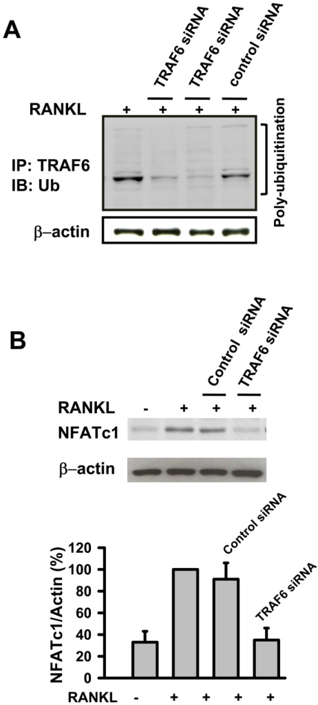 TRAF6 is poly-ubiquitinated after RANKL stimulation and RANKL-induced expression of NFATc1 in osteoclast differentiation is dependent on TRAF6.(A) RAW264.7 cells were stimulated with RANKL in the absence or presence of TRAF6 siRNA (the results represented are two separate experiments) or control siRNA. After incubation, cell lyses were immunoprecipitated with anti-TRAF6 antibody. Bound proteins were further immunoblotted with anti-ubiquitin or anti-β-actin as described in methods. (B) RAW264.7 cells were stimulated with RANKL in the presence or absence of TRAF6 siRNA or control siRNA. After stimulation, cells lysates were immunoblotted with anti-NFATc1 or anti-β-actin antibodies. Results are expressed as the mean ± SEM for each group from three to four separate experiments. **p<0.01, different from values after treatment with RANKL alone.
