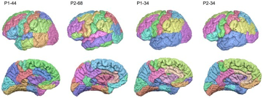 Representative cortical parcellations of P1 and P2 at the native and common node scale.Temporal lobe regions in P1 native scale parcellations (P1-44, far left) were merged, resulting in a lower scale parcellation (P1-34, middle right). Selected regions across the entire cerebral cortex in P2 native scale parcellations (P2-68, middle left) were merged (P2-34, see Fig. 1). This resulted in a common and anatomically equivalent parcellation scale of 34 nodes for both P1 and P2 networks.