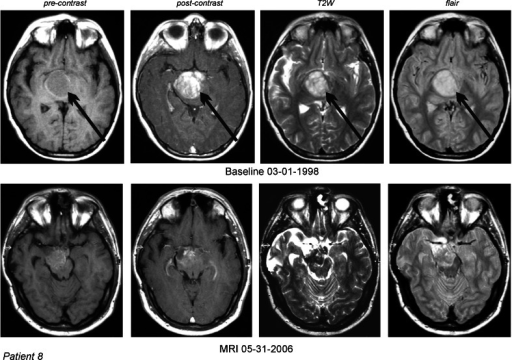 DIPG in a 10-year-old male (case 8) which recurred two times after partial surgical resection. MRI of the head: 1—T1 nonenhanced, 2—contrast-enhanced, 3—T2W, and 4—FLAIR images. PR was documented by the MRI and CR was established by the normalization of the follow-up PET scans. Arrows indicate tumors