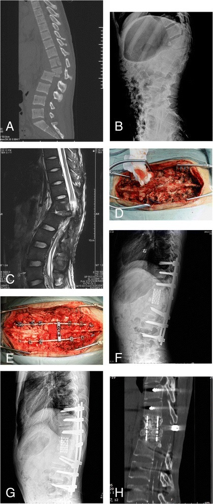 Radiographs and photographs of case 7. (A) Sagittal computed tomography scan of the initial injury showed dislocation at L1/L2 levels and significant comminution of the L1 vertebral body. (B) Preoperative lateral X-ray film: Collapse of the anterior column after implant removal and local kyphosis of 52°. (C) Preoperative MRI T2-weighted film. Intraoperative photographs of thoracolumbar spine before (D) and after (E) correction. (F) Immediately postoperative lateral radiograph: The kyphosis was corrected to 12°. (G) Lateral film at 2-year follow-up: Good maintenance of the correction and 4° of correction loss was noted. (H) Computed tomography scan at 2-year follow-up: Solid bony intervertebral fusion was achieved.