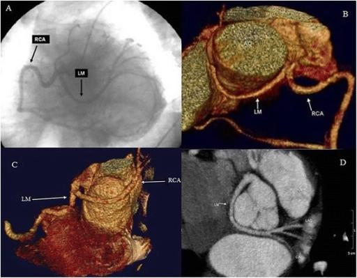 Coronary angiography, volume rendering and curved multiplanar reconstruction from MSCT of the coronary anomalies. (Panel A) Coronary Angiography (CAG) projection showing a Single Coronary Artery (SCA) arising from right sinus of Valsalva and dividing in right coronary artery (RCA) and Left Main (LM). Volume rendering (panel B and C) and Curved Multiplanar Reconstruction (panel D) from MSCT showed that LM turned posteriorly behind the aorta (non-malignant anomaly), reaching the atrio-ventricular groove where it divides into left anterior descending (LAD) and left circumflex (CX) arteries.