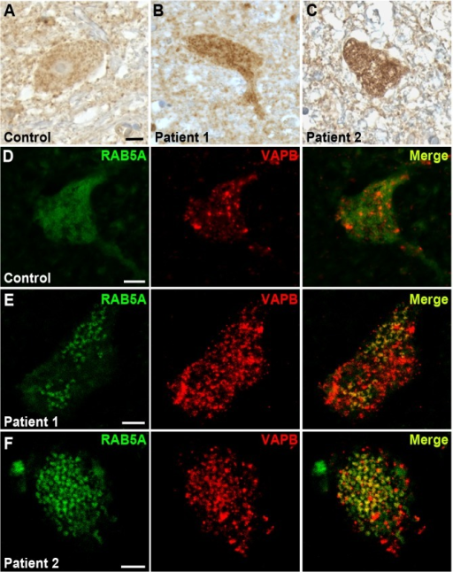RAB5 accumulates in the cytoplasm of spinal cord neurons of patients with ALS.(A-C) Immuno-enzymatic detection of Rab5 in post-mortem tissues from ALS patients (B,C) and controls (A). RAB5 staining shows punctuate and diffuse distribution of immunoreactivity throughout the cytoplasm, whereas RAB5 accumulates in cytoplasmic clusters of spinal cord neurons of patients affected by ALS. (D-F) Immunofluorescence staining with anti-RAB5 and anti-hVAPB antibodies of spinal cord neurons from controls (D) and ALS patients (E and F). In ALS tissues, RAB5 redistributes to form clusters that overlap with hVAPB-positive immunoreactivity. Scale bar: 10μm.