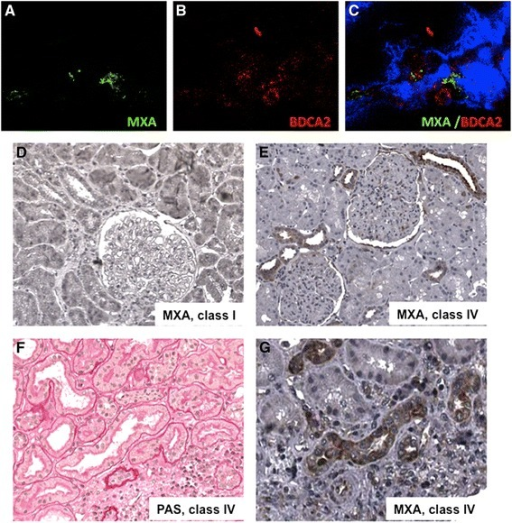 Detection of IFN-alpha signature in renal biopsies of patients affected by lupus nephritis. (A-C) Infiltrating plasmacytoid DC in class IV lupus nephritis were characterized with a double staining for MXA (green, A) and BDCA-2 (red, B), a specific plasmacytoid DC marker (C, merge analysis). (D) Type I IFN-induced MXA protein was rarely detectable in class I lupus nephritis; (E) on the contrary, MXA positive tubular epithelial cells and infiltrating leucocytes were detectable in class IV lupus nephritis. (F) PAS staining on a seriate tissue section of the same specimen stained for MXA. (G) Immunohistochemistry analysis for MXA was performed on renal biopsies of eight patients for each group, as described in the Methods section. DC, dendritic cells; PAS, Periodic acid-Schiff.