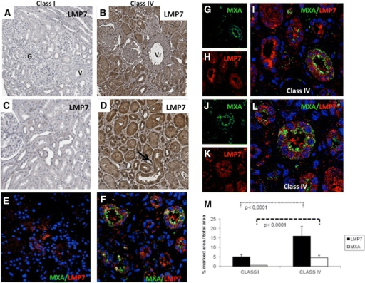 Immunoproteasome subunit LMP7 induction in tubular epithelial cells from SLE patients with nephritis. Increased expression of LMP7 was found in renal biopsies of patients with class IV lupus nephritis (B,D) compared to those with class I (A,C). LMP7 expression was found at the tubular interstitial level but not on glomerular cells (G) and vessels (V). Co-localization of LMP7 (red H, K) and MXA (green G, J) in tubular epithelium of patients with lupus nephritis was investigated by immunofluorescence/confocal microscopy (E-L). We found co-localization of LMP7 and MXA in class IV lupus nephritis (F,I,L) but not in class I, where MXA was absent and LMP7 had very low expression (E); nuclei were stained with TO-PRO-3 (blue); (L) zoom of figure F. (M) Quantification of immunohistochemical staining was carried out as described in Methods section. The histograms represent the increased tissue expressions of MXA (P <0.0001) and LMP7 proteins (P <0.0001) in eight class IV lupus nephritis patients compared to eight patients of class I/II. SLE, systemic lupus erythematous.