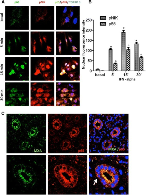 Activation of NF-kB pathways in tubular epithelial cells with type I IFN signature. (A) RPTEC were stimulated at different time points with IFN-alpha 100 U/ml and stained for p65 (green) and pNIK (red). At basal conditions both proteins were detectable only in the cytoplasm; after five minutes of stimulation p65 and pNIK began to move from the cytoplasm to the nucleus with significant translocation after 15 and 30 minutes. (B) Specific p65 and pNIK fluorescence intensity inside the nuclei was quantified as described in Methods section. Data are averages ± SD for n = 10 cells from one field on one slide; *P <0.05 and °P <0.05 for comparison pNIK and p65 versus basal, respectively. The images and results are representative of at least three independent experiments. (C) Double staining for MXA (green), p65 (red) and merge analysis (yellow) on class IV lupus nephritis showing translocation of p65 from cytoplasm to nuclei. NF-kB, nuclear factor-kB; RPTEC, renal proximal tubular cells.