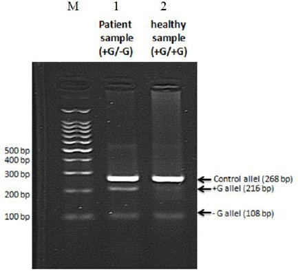 PCR amplification for detection of FSC 8/9 mutation in one vial using T-ARMS technique (multiplex PCR). From left to right, M is a 100 bp marker; lane 1 is a sample from patient; lane 2 is a sample from a healthy individual. The sample from patient is confirmed as heterozygous in multiplex conditions, as demonstrated previously in separate vials