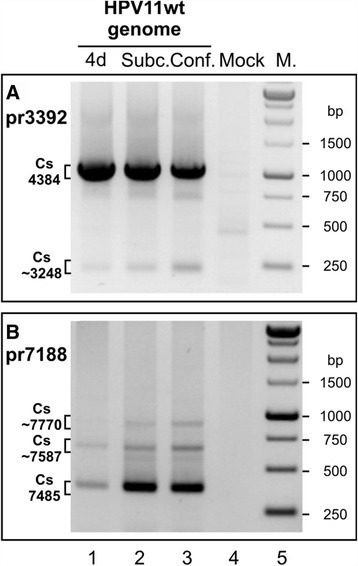 Mapping of polyadenylation CSs in the HPV11 genome in U2OS cells via 3´ RACE. U2OS cells were transfected with the HPV11wt genome (A and B, lane 1) or together with the linearized pBabe-Neo construct (A and B, lanes 2 and 3). Mock transfection was used as a negative control (lane 4). PolyA+ mRNA was extracted at 4 or 10 days post-transfection. All distinct products were purified, cloned, sequenced and analyzed. (A) 3´ RACE analysis of the HPV11 early region CSs using the HPV11-specific primer pr3392. The indicated 3´ RACE products represent the potential CSs at nt 4384 and nt ~3248. (B) 3´ RACE analysis of the HPV11 late region CSs using the HPV11-specific primer pr7188. The indicated 3´ RACE products represent the potential late CSs at nt 7485, at nt ~7770 and at nt ~7587.