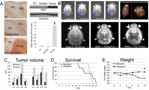 Medulloblastoma have increased HK2, and the ketogenic diet does not slow growth of Ptch1+/-Trp53-/- medulloblastoma.(A) Immunohistochemistry with HK2 antibody show tumors have increased HK2 level in comparison to normal cerebellum and comparable to a heightened level seen in the external granule layer of P7 mice containing rapidly dividing cerebellar granule neuron precursor cells. Western analysis quantification show tumor tissues have increased HK2 level over normal cerebellar tissue (p = 0.000012) and to whole P7 cerebellar tissue (p = 0.000012). EGL = external granule layer, IGL = internal granule layer. (B) Six-week old Ptch1+/-Trp53-/- mice were imaged with MRI and tumor volumes were calculated. Four consecutive MRI images of one spontaneous medulloblastoma, traced for volume calculation. Representative images of a single tumor over two weeks. (C) No changes were seen in individual tumor sizes before and after one week of ketogenic diet initiation compared to mice on a standard diet. The average percentage of tumor volume change from initial volumes in the standard and ketogenic diet groups were 182 ± 66% and 240 ± 123% respectively (p = 0.437). (D) The ketogenic diet did not affect survival (p = 0.778). (E) Mice on the standard diet lost an average of 10% of their body weight while mice on the ketogenic diet maintained their body weight (p = 0.030 on day 10). S = standard diet, K = ketogenic diet.