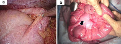 Intraoperative findings. a Ileocolic intussusception was confirmed. Laparoscopic reduction failed. b The mesentery was markedly thickened, and the ileum was edematous. Although the tumor (arrow) in the terminal ileum was partially reduced, manual reduction was unsuccessful. Ileocecal resection was performed.
