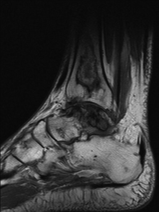 Sagittal MRI demonstrating serpentine areas of bone infarcts in the distal tibia and talus and ON of cuneiform bone.