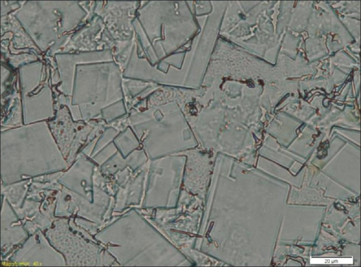 Optical microscopy showing cholesterol crystals (40X magnification)