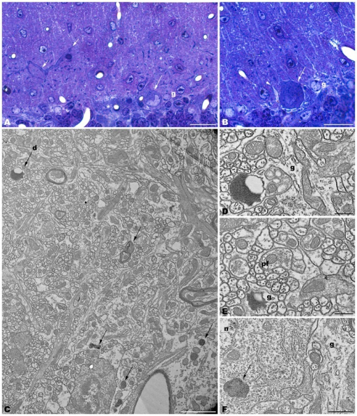 Parasagittal sections through the cerebellar cortex of 4-month-old tbl/tbl mice. 1.5 μm-thick sections illustrate that disappeared Purkinje cells are substituted by glial Golgi-epithelial cells (g, A,B). Remaining degenerating Purkinje cells possess degenerative dark accumulations within the cytoplasm of the soma (A,B, asterisk, arrows) and thick, dark dendritic trees (A, small arrow). Note the swelling of glial processes surrounding Purkinje cells (B, arrowhead). Degenerative signs consisting of lysosomes, electron-dense debris, and autophagosomes with different degrees of evolution (arrows in C–F), are present in the dendrites of the molecular layer and in the Purkinje cells' cytoplasm (arrows, in C,F). Necrotic debris is also engulfed by glial cell processes (D,E, g). n, nucleus of a Purkinje cell. Pf, parallel fiber. Bars = 20 μm (A,B), 2 μm (C), and 0.5 μm (D–F).