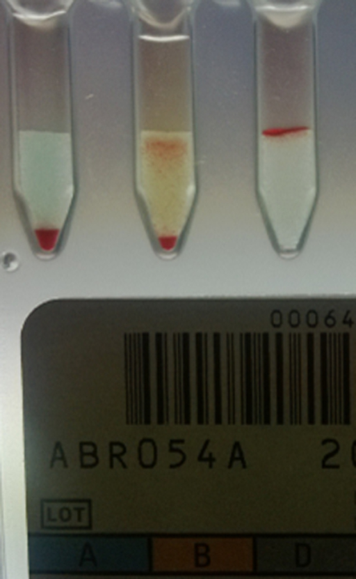 Results of forward blood grouping by column agglutination technology showing mixed field agglutination with anti-B.