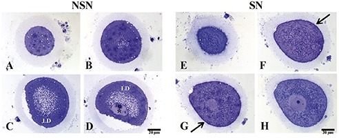 A-D) Representative images of semi-thin sections of discarded human NSN oocyte; asterisk refers to heterochromatin blocks; LD, lipid droplets. E-H) Representative images of semi-thin sections of discarded human SN oocyte; arrows point to thin glycocalix distributed at the cellular surface.