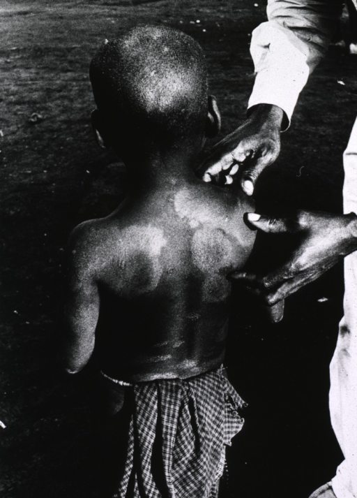 <p>A young leprosy patient (back to camera) is being examined.</p>