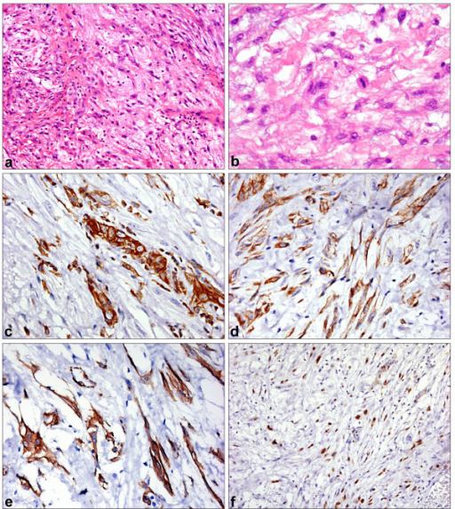 Spindle cell carcinoma. 1a: Spindle cell lesion with myxoid stroma (HE ×200). 1b: Mild to moderate atypia in tumor cells with rare mitoses (HE ×400). 1c: Vimentin immunoperoxidase – strong expression in tumor cells (×400). 1d: Pan-cytokeratin AE1/3 immunoperoxidase (×400). 1e: smooth muscle actin immunoperoxidase (×400). 1f: Proliferation (Ki67) up to 80% (immunoperoxidase ×200).