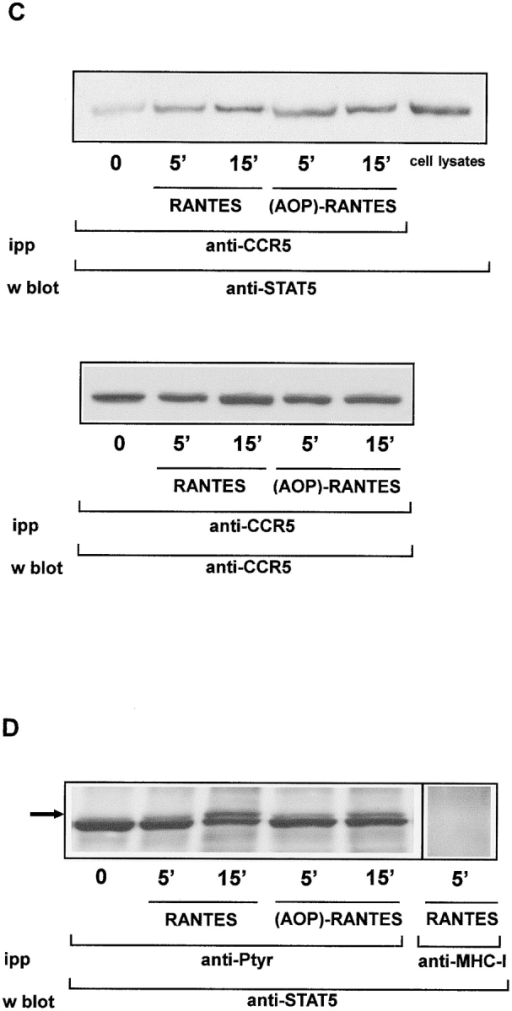 Both RANTES and (AOP)-RANTES activate the JAK/STAT pathway in CCR5-transfected HEK-293 cells. (A) CCR5-transfected HEK-293 cells were stimulated with RANTES or (AOP)-RANTES (10 nM). Lysates were immunoprecipitated with mAb  CCR5-03 and analyzed in Western blot with anti-JAK1 antibodies. The figure shows control RANTES-stimulated (10 nM) CCR5-transfected HEK-293 cell lysates immunoprecipitated with anti–β2-microglobulin mAb and analyzed with anti-JAK1 antibodies. As a  control, CCR5-transfected HEK-293 cell lysates were tested in Western blot with the same anti-JAK1 antibodies. CCR5 protein loading was controlled by stripping and reprobing membranes with mAb CCR5-02 (bottom). (B) Cells as in A were immunoprecipitated  with anti-PTyr antibody and tested in Western blot with anti-JAK1 antibodies. As a positive control, EGF-stimulated A431 cell lysates  were tested in Western blot with anti-JAK1 antibodies as above. (C) Cells as in A were immunoprecipitated with CCR5-03 mAb and  analyzed in Western blot with anti-STAT5 antibody. CCR5 protein loading was controlled as before. As a positive control, CCR5-transfected HEK-293 cell lysates were tested in Western blot with the same anti-STAT5 antibody. (D) Cells as in C were immunoprecipitated with anti-PTyr antibody and analyzed in Western blot with anti-STAT5 antibody. Protein loading was carefully controlled using a  protein detection kit as above. The figure shows control RANTES-stimulated (10 nM) CCR5-transfected HEK-293 cell lysates immunoprecipitated with anti–MHC class I mAb and analyzed with anti-STAT5 antibodies. Arrow indicates the position of STAT5. In all  cases, one experiment of five is shown.