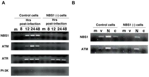 NBS1 associates with viral DNA and is required for recruitment of ATM but not ATR. (A) Chromatin immunoprecipitation of infected NBS1-deficient and control cells. To establish if NBS1, ATM, and/or ATR associate with viral DNA, normal and NBS1-deficient cells were infected with the HIV-1-based vector at an m.o.i. of 0.1 and chromatin immunoprecipitation was performed with anti-NBS1, anti-ATM and anti-ATR antibodies as described in the Experimental Procedures. m – mock, uninfected cells. The immunoprecipitating antibody is indicated on the left side of the photograph of the gel. (B) Chromatin immunoprecipitation of infected NBS1-deficient and control cells, which were transfected with the normal NBS1 gene. Control and NBS1-deficient cells were transfected with the NBS1-coding plasmid or an empty vector. 48 hrs post-transfection, cells were infected with the HIV-1-based vector at an m.o.i. of 0.1 and chromatin immunoprecipitation was performed 24 hrs later with anti-NBS1 and anti-ATM antibodies as described in the Experimental Procedures. m – uninfected cells, v – cells infected with the HIV-1-based vector, N – cells transfected with the normal NBS1 gene and infected with the HIV-1-based vector, c – cells transfected with the empty plasmid vector and infected with the HIC-1-based vector.