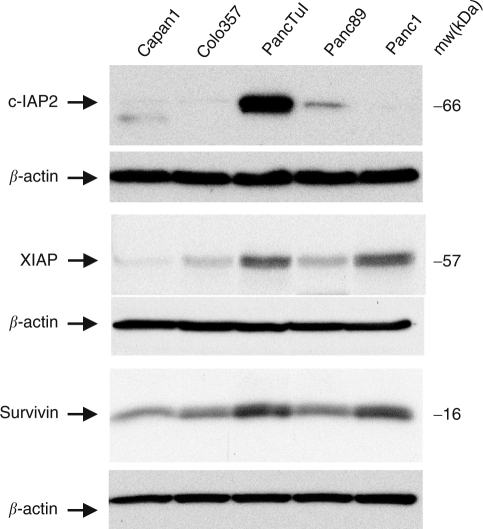 Immunoblot detection of proteins of the IAP-family in pancreatic tumour cells. Protein extracts (30 μg) of pancreatic tumour cells were separated by 12% SDS–PAGE, blotted onto PVDF membranes and the expression of c-IAP2, XIAP and Survivin was analysed using specific antibodies. In parallel, β-actin expression was determined in all lanes. Representative results of three independent experiments are shown.