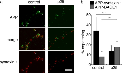 Overexpression of p25 promotes microdomain switching in primary neurons. At 3 DIV, hippocampal neurons were transfected with human APP, syntaxin 1–HA, BACE1AA, and p25. At 6 DIV, patch formation was induced by mouse anti–human APPex, rat anti-HA, and rabbit anti-BACE1ex. (a) Coexpression of p25 caused a reduction of APP–syntaxin 1 copatching on axons. Copatching is indicated by arrowheads. Bar, 5 μm. (b) Quantification of copatching on axons demonstrates a cdk5-induced switching of microdomain association of APP in a similar way to N2a cells. Data are means + SD based on three independent experiments (n = 30–38). ***, P < 0.001.