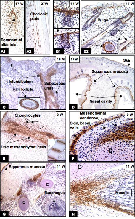 CAIX expression in the placenta, skin, squamous mucosa and skeletal system. The mesenchymal cells of the chorionic plate and umbilical cord retained their CAIX expression until birth (A1, A2). In the epidermis, CAIX expression was limited to the basal layer (B1, F), hair buds (B1) and sebaceous units, hair follicles and the bulges (B2, arrow and inserts). Between 18 to 24 months after birth, CAIX expression was restricted to the hair follicles, sebaceous units, and the infundibulum (C). In the skeletal system, persistent high levels of CAIX immunoreactivity was seen in the chondrocytes, mesenchymal condense (E, F, G) and tendoligamental tissues (G, H). The basal layer of squamous mucosa of the nose (D) and oral cavity (G) also expressed CAIX. W = gestational age in weeks; M = postnatal age in months. Original magnifications: A1, A2, B, C and H (20×); D and G (4×); E (10×) and F (40×).