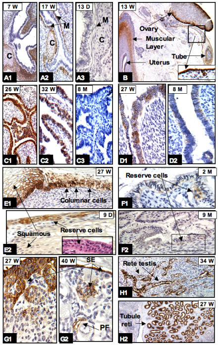 CAIX expression in bronchial trees and genital organs: In the bronchial trees high expression of CAIX was seen in the peribronchial immature mesenchymal cells and cartilage (designated C) (A1) but progressively diminished when the tissues became mature (A2, A3). CAIX positivity was persistently seen in peritoneal lining cells as shown in B (insert) and G1, G2 (surface epithelium [SE], arrow). As early as the 13th week of gestation, CAIX positive cells were seen in the flat SE of the ovary, the outer muscular layer and rare epithelial cells of the uterus and fallopian tubes (B). Around 26 to 27 weeks, high levels of CAIX expression were transiently seen in the epithelium of fallopian tubes (C1), endometrium (D1), and the cervix (E1). After birth, there was either no CAIX expression (C3) or expression was limited to occasional endometrial cells (D2), reserve cells of the cervix (E2, and corresponding H&E stain in insert, and F1, F2). In the ovary, CAIX expression was observed in SE migrating into the stroma and forming the primordial follicle (PF) (G1, G2). Persistent expression of CAIX was observed in the coelomic remnants: rete testis (H1) and tubule reti (H2). W = gestational age in weeks; D, M = postnatal age in days and months, respectively. Original magnifications: A1, A2, A3, C1, C2, C3, E1, E2 and F2 (20×); B (4×); H1 and H2 (10×); D1, D2, F1, G1 and G2 (40×).