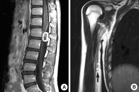 MRI of the thoracolumbar spinal cord and right humerus. (A) Sagittal T1-weighted image shows a well demarcated 1.8×2.4 cm sized contrast-enhancing intradural extramedullary mass at the T12-L1 level. (B) Sagittal T2-weighted MR image showing a well demarcated 1.5×2.0 cm sized ovoid shaped mass adjacent to the median nerve on the medial side of the right middle humerus.