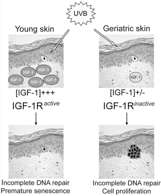 The influence of aging on IGF-1 expression in the skin and its role in UVB-induced carcinogenesisKeratinocytes in aged epidermis exposed to UVB wavelengths in sunlight may respond inappropriately to the UVB exposure. The dermis of young adults produces sufficient levels of IGF-1 to activate the IGF-1R on epidermal keratinocytes. The appropriate activation of the IGF-1R on keratinocytes leads to the induction of stress-induced senescence following sufficient UVB exposure. In contrast, the expression of IGF-1 is silenced in aged dermis. The consequence of diminished IGF-1 expression is a lack of IGF-1R activation in epidermal keratinocytes. Instead of undergoing stress-induced senescence, the aged keratinocytes are able to proliferate in the presence of UVB-damaged DNA. We hypothesize this decrease in IGF-1 expression with advancing age is a contributor to the increase in non-melanoma skin cancer seen in geriatric patients.