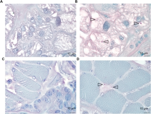 Ticks infection on mouse.Detection of B. birtlesii in adult I. ricinus salivary glands (A, B) and muscle tissues (C, D) sections colored with hemalun-eosin, by histochemical staining: A & C – uninfected ticks; B & D – infected ticks. Bacteria are indicated with arrows.