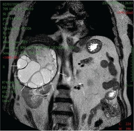 Magnetic resonance image showing the characteristic appearance of a hydatid cyst. Coronal T2 WI MRI shows marked hyperintensity with a hypointense rim (pericyst) of several daugther cysts that have less signal intensity than mother cyst.