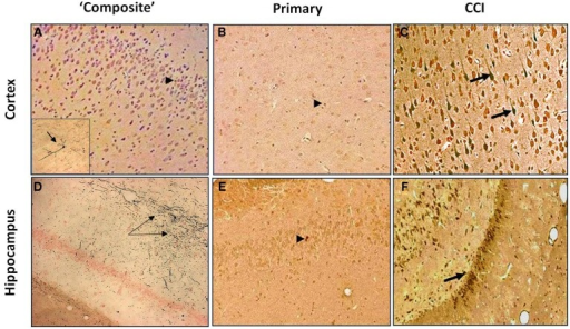 "Silver Staining of coronal brain sections following primary or ""composite"" blast exposure. Corresponding tissue staining 7 days after ""composite blast,"" primary blast, and CCI is shown in (A–C) for cortex, and in (D–F) for hippocampus. Arrowheads indicate occasional silver accumulation in the cells of non-neuronal origin. Arrows indicate diffuse silver accumulation in neurons. Figure 3A inset: a very rare accumulation of silver in a cortical neuron. Please see Section ""Materials and Methods"" for details."