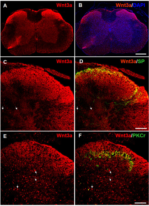 Spatial distribution of Wnt3a in mouse SCDH.A. Immunostaining of Wnt3a in mouse spinal cord. Wnt3a (red) is detected throughout the entire gray matter, with more intensive label in the superficial laminae of SCDH. B. A merged image of Wnt3a and DAPI signals to show the distribution of Wnt3a-positive cells. C-D. Wnt3a staining (C) and double-staining of Wnt3a and SP (D). Wnt3a staining is observed in the SP-labeled (green) lamina I layer and the deeper regions in the SCDH. E-F. Wnt3a staining (E) and double-staining of Wnt3a and PKCγ (F). Wnt3a staining is detected in PKCγ-labeled (green) lamina II and probably lamina III. Scattered cells with strong Wnt3a staining are also in the deep SCDH laminae (arrows, C-F). Scale bars for A and B: 300 μm; Scale bars for C-F: 100 μm.