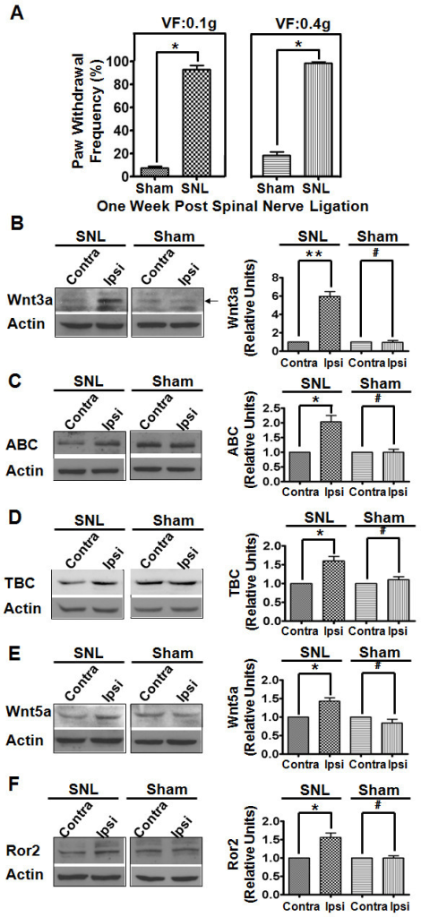 Up-regulation of Wnt signaling proteins in the neuropathic pain model.A. Neuropathic pain was induced 1 week post L5 spinal nerve ligation (SNL, n = 6). Mice with sham operation (without SNL, n = 6) were used as controls. B-F. Wnt3a (A), ABC (B), TBC (C), Wnt5a (D), and Ror2 C (E) proteins in the ipsilateral (ipsi) and contralateral (contra) sides of the SCDH at 7 days after unilateral L5 spinal nerve ligation (SNL). Compared with the contra side, significant increases in the levels of Wnt signaling proteins were detected in the ipsi side of SNL but not control mice (n = 3). Data are summarized in graphs at right (**, p < 0.01; *, p < 0.05; #, p > 0.05; student's t-test).