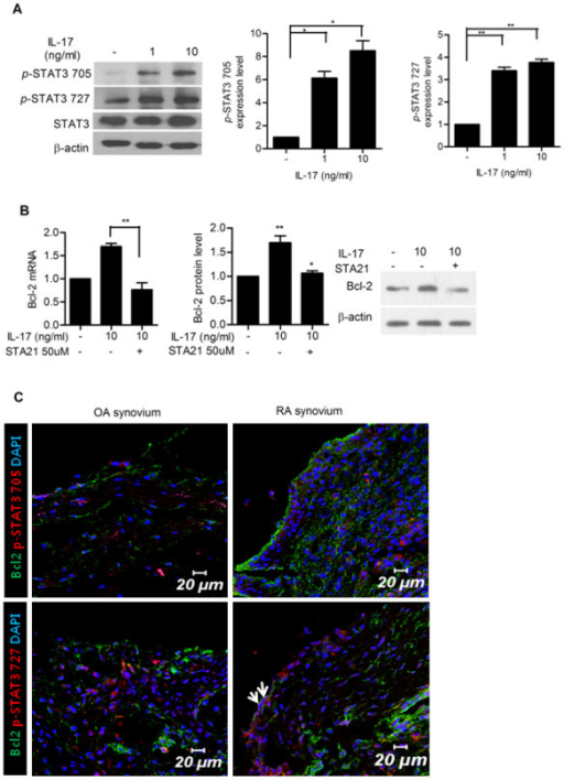 Signal tranducer and activator of transcription 3 (STAT3) mediates IL-17-induced Bcl-2 upregulation in synoviocytes in rheumatoid arthritis (RA). (A) IL-17 upregulated the expression of STAT3 in RA-fibroblast-like synoviocytes (FLSs). RA-FLSs (n = 3) were cultured with IL-17 (0, 1 and 10 ng/ml) for 12 hours. The expressions of STAT3 and phosphorylated STAT3 (pSTAT3 705 and pSTAT3 727) were measured by western blot. The representative figure is shown in the left panel. Data are expressed as mean ± SD of three independent experiments. *P < 0.05, **P < 0.01 compared with the untreated group. (B) RA-FLSs (n = 3) were cultured with IL-17 (0 and 10 ng/ml) in the presence or absence of STAT3 inhibitor (STA21 50 μM) for 12 hours. The expression of Bcl-2 mRNA and protein was evaluated by real-time PCR and western blot. (C) Co-localization of STAT3 and Bcl-2 in rheumatoid synovium. Tissue sections from the synovium of patients with RA (n = 3) or osteoarthritis (OA) (n = 3) were stained with anti-Bcl-2, anti- pSTAT3 727 and anti-pSTAT3 705 antibodies. Co-localization of STAT3 and Bcl-2 was observed in synovial lining cells of RA patients. The representative figure is shown.