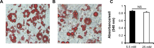 Oil Red O staining of 3T3-L1 adipocytes.Notes: The differentiation of 3T3-L1 preadipocytes to adipocytes was carried out for 10 days 3T3-L1 adipocytes were stained with Oil Red O. (A and B) Representative images of adipocytes grown under the (A) 5.5 mM glucose and (B) 25 mM glucose conditions. (C) Oil Red O contents were determined colormetrically. n=3.Abbreviation: NS, not significant.