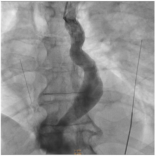 Venous angiogram showing contrast coursing through the persistent left superior vena cava and merging with the coronary sinus before emptying into the right atrium.