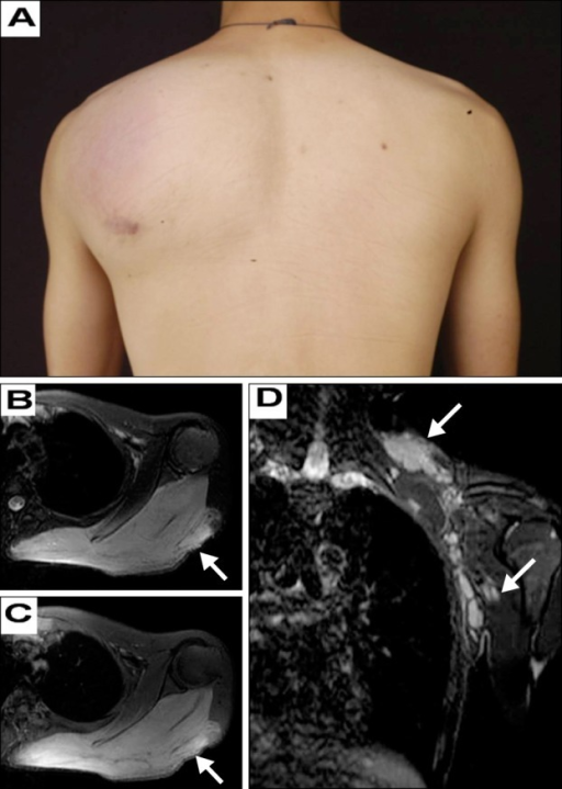 (A) Massive cutaneous nodule on the left shoulder and back. (B) Axial T2 weighted magnetic resonance image (MRI) shows a mass lesion (white arrow) with extension into muscle group of the left shoulder and back. (C) Gadolinium-enhanced axial T1 weighted MRI shows an enhancing mass lesion (white arrow). (D) Coronal T2 weighted MRI shows lymph nodes enlargement in the part of supraclavicular fossa and axillary fossa (white arrows).