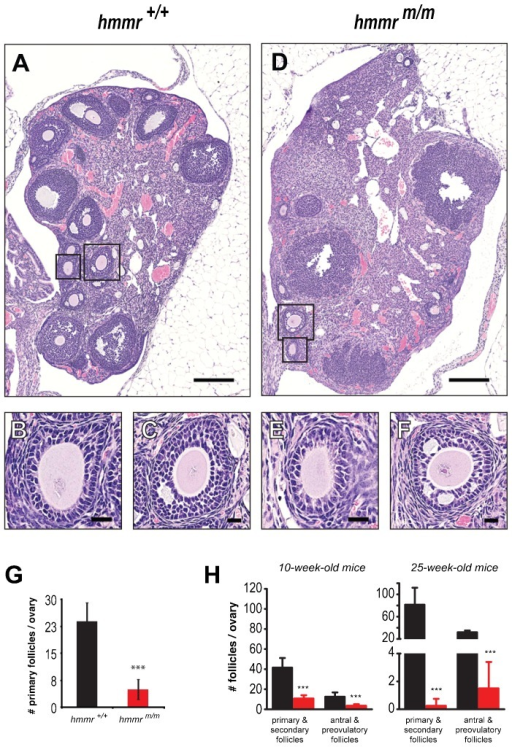 The RHAMM centrosome-targeting domain is required for adult ovarian folliculogenesis.Visualization (A–F) and quantification (G,H) of ovarian follicles in adult mice reveals a severe folliculogenesis defect in hmmrm/m mutants. (A–F) Hematoxylin- and eosin-stained representative sections of ovaries from hmmr+/+ (A) and hmmrm/m (D) females demonstrate depletion of the hmmrm/m ovary of follicles. However, the few follicles formed in hmmrm/m ovaries (E,F) exhibit no morphological defects as compared to controls (B,C). Boxes in A and D indicate the magnified areas in B,C and E,F, respectively. (G) Quantification of primary follicles (e.g. B,E) in ovaries of 10-week-old mice, reveals a severe folliculogenesis defect in hmmrm/m mutants, which contain up to 5-fold decreased number of these follicles when compared to their wild type counterparts. (H) The defective folliculogenesis in RHAMM mutants is further demonstrated by the significant reduction of both immature (primary, secondary) and mature follicles (antral, preovulatory) in hmmrm/m ovaries, in 10-week-old as well as in 25-week-old mice. In G,H (10-week-olds), hmmr+/+ n = 11 and hmmrm/m n = 4; in H (24-week-olds), hmmr+/+ n = 4 and hmmrm/m n = 4. Data presented as mean±s.d.; ***p<0.001. Scale bars: 200 µm (A,D); 20 µm (B,C,E,F).