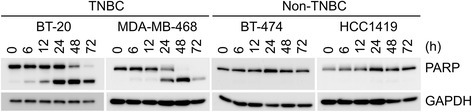 Apoptosis induction by midostaurin. TNBC and non-TNBC cells indicated were treated with 1 μM midostaurin for various periods, and then subjected to Western blot analysis using the antibody against PARP to detect its cleavage. GAPDH was employed as a control
