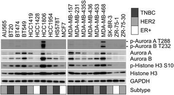 Western blot analysis of breast cancer cell lines. Cell lysates from the 19 breast cancer cell lines were subjected to Western blot analysis. Aurora kinases A and B, p-Aurora kinase A and B, and Histone H3 and p-Histone H3 Ser10 were detected using respective antibodies. The experiments were carried out after calibration by using GAPDH as an internal control. Breast cancer subtypes are indicated as follows: gray, TNBC; light gray, HER2; white, ER+