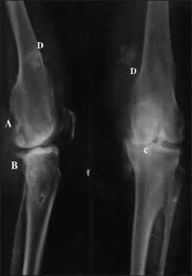 Radiograph Findings: Kellgren-Lawrence grade III or less: (a) Degenerations, (b) spurs, (c) narrowing bone space (d) exostoses