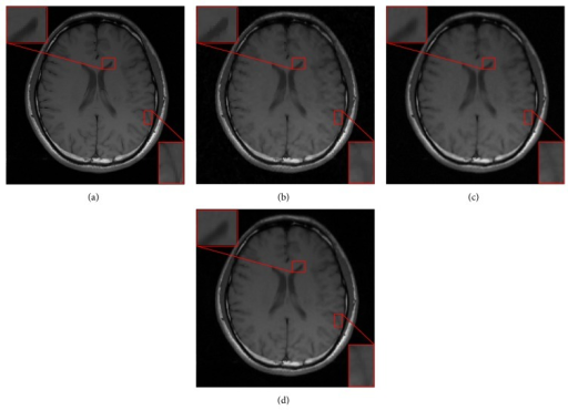 (a) Reference. Reconstructed images from the radial sampling mask with accelerating factor R = 4 by (b) CSMRI-TV, (c) DLMRI, and (d) our proposed DDTF-MRI, respectively.