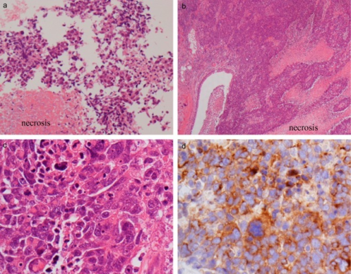 (a) Biopsy tissue. The tumor showed a proliferation of tumor cells with large and irregular nuclei and necrosis (hematoxylin and eosin [H&E] stain, × 200). (b–d) Surgical resected tissue. The histopathological findings from were similar to that from the biopsy tissue (b: H&E stain, × 40 and c: H&E stain, ×400, respectively). (d) We diagnosed a large cell neuroendocrine carcinoma based on immunohistochemical study; the tumor was positive for synaptophysin.
