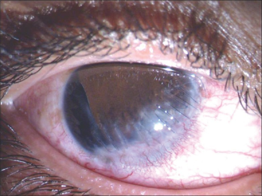 Preoperative photograph showing a corneal scar inferiorly and a large iridodialysis from 7 O'clock to 10 O'clock position