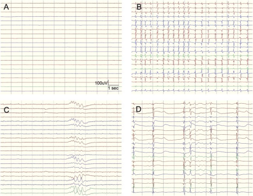 Highly malignant EEG patternsHighly malignant patterns used in the study defined according to the standardized EEG terminology by the American Clinical Neurophysiology Society. (A) Suppressed background (amplitude <10 μV, 100% of the recording) without discharges. (B) Suppressed background with superimposed continuous periodic discharges. (C) Burst-suppression (periods of suppression with amplitude <10 μV constituting >50% of the recording) without discharges. (D) Burst-suppression with superimposed discharges.