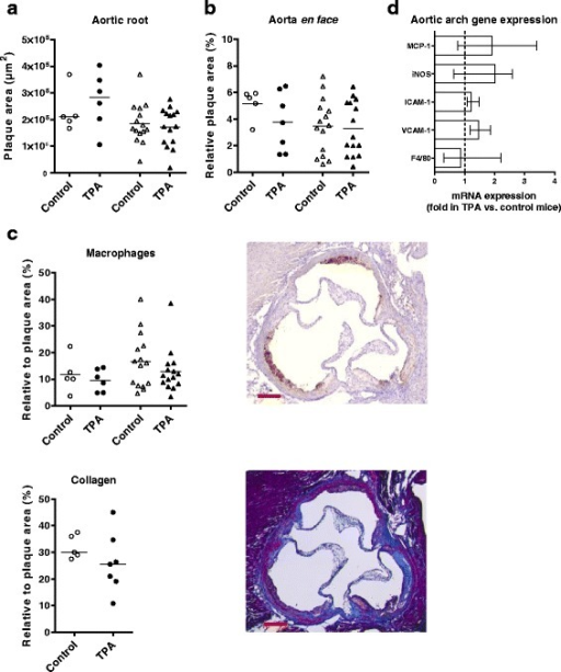 Topical 12-O-tetradecanoylphorbol-13-acetate (TPA) application does not affect atherogenesis in apolipoprotein E deficient (ApoE−/−) mice. Plaque areas measured in control and TPA mice in: a cross sections of the aortic root (μm2), and b the aortic arch en face (% of the aortic arch area); data represent mean values, parametric t-test. In a, the number of sections quantified were n = 4–7/mouse in study 1, and n = 1–4/mouse in study 2. c Quantification of the level of macrophages and monocytes (MOMA-2, brown) and collagen content (Trichrome, blue) in aortic root plaque (depicted as % of the total plaque area in the aortic root, mean values, parametric t-tests). Data from study 1 (n = 5–7/group) are shown as follows: control: unfilled circle; TPA: filled circle, and from study 2 (n = 10–15/group) as control: unfilled triangle; TPA: filled triangle. Also shown representative photos of the two aortic root stainings, with scale bar = 200 μm. d mRNA levels of the macrophage marker F4/80, vascular adhesion molecule 1 (VCAM-1), intercellular adhesion molecule 1 (ICAM-1), inducible nitric oxide synthase (iNOS), and monocyte chemoattractant protein 1 (MCP-1) in the aortic arch as measured by real-time quantitative PCR. The expression levels were normalized to the housekeeping gene glycealdehyde-3-phosphate-dehydrogenase (GAPDH). Subsequently, fold expression in TPA mice relative to control mice was calculated and depicted (control mice set to 1 and depicted as a dotted line). Ten mice/group from study 2 were randomly selected for this analysis. Results are shown as median (IQR), and statistical differences were analysed with non-parametric t-test