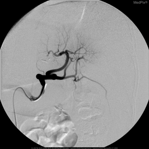 Multiple images with selective catheterization of the splenic artery demonstrate no active hemorrhage with decrease perfusion superiorly secondary to compressive effects of the overlying hematoma.  No coil embolization was performed and the patient improved with conservative monitoring only.