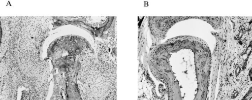 Histological examination of the joints from IRF1+/− and IRF-1−/− DBA/1  mice. Cellular infiltrate in the  synovium and erosion of cartilage and bone were observed in  joints from control IRF-1+/−  DBA/1 mice (A). In contrast,  limited infiltration of cells was  detected in IRF-1−/− DBA/1  mice (B). Sections were excised  from CII-immunized mice at 7–8  wk after immunization and stained  with hematoxylin and eosin.  (×50).