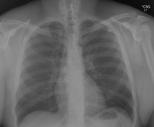 PA and Lateral views of the Chest performed on XXXX, XXXX.