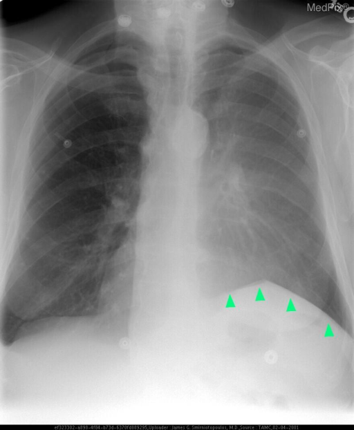 Because of the volume loss from the LUL collapse, there is elevation of the left hemidiaphragm (green arrowheads).